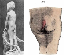 À gauche, un enfant à queue découvert par le Dr Nédellec (extrait de l'incontournable ouvrage de Martin Monestier, «Les Monstres», Le Cherche Midi). À droite, un autre spécimen représenté dans l'« Illustrated Encyclopedia of Human Anatomic Variation » (opus V, «Skeletal Systems»). À noter que l'idée du personnage de la femme à queue m'est venu d'un formidable roman de Katherine Dunn, « Un amour de monstres », paru chez First en 1990