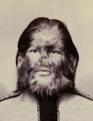 Fedor Jeftichew dans sa jeunesse (1868-1904). Ce jeune russe, qui souffrait d'une hypertrichose sévère et connut la renommée dans les freak shows aussi bien en Amérique qu'en Europe, m'a servi de modèle pour le personnage d'Anton Frazer